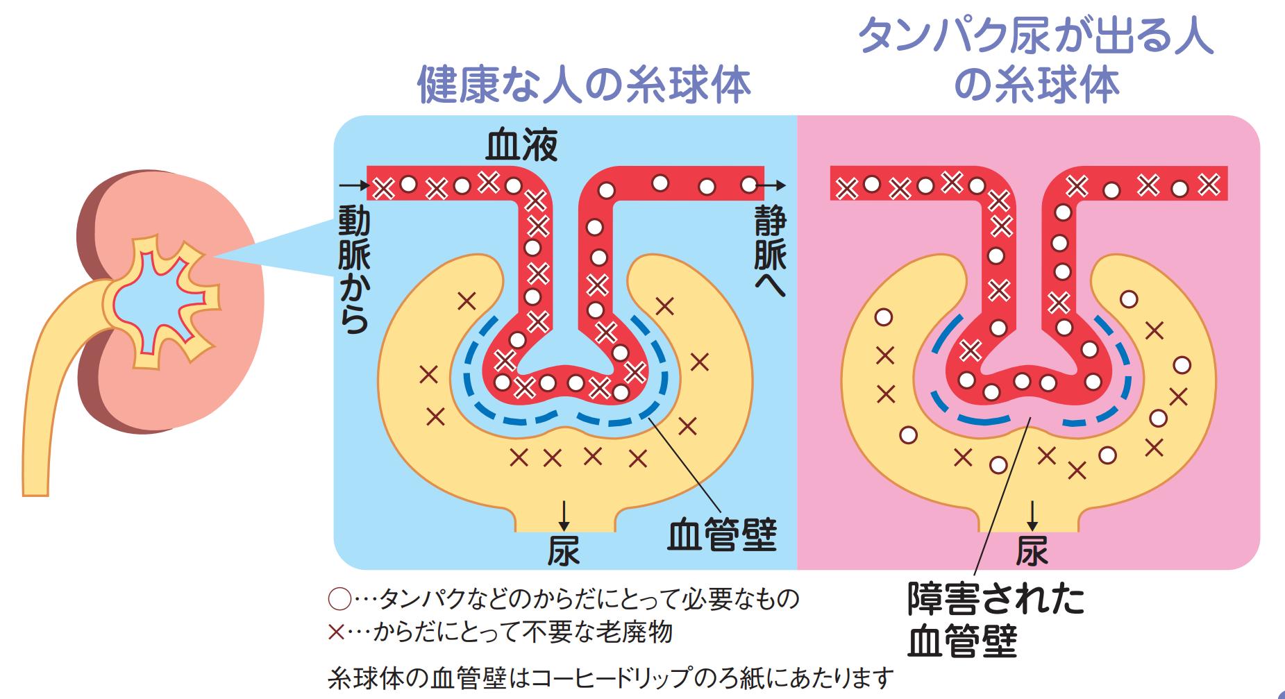プラス 尿 蛋白 尿蛋白プラス1